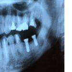 インプラントの手術を受けてきました。全然痛みがなくビックリ!