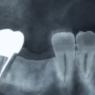 歯根嚢胞で抜歯・切開手術後、食べかすがつまって大変だった2ヶ月間
