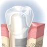 インプラント手術を受けて半年経過!まるで自分の歯みたい!!